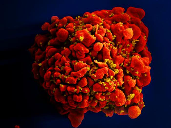 Produced by the National Institute of Allergy and Infectious Diseases (NIAID), this digitally-colorized scanning electron micrograph (SEM) depicts a single, red-colored H9-T cell that had been infected by numerous, spheroid-shaped, mustard-colored human immunodeficiency virus (HIV) particles, which can be seen attached to the cell's surface membrane.